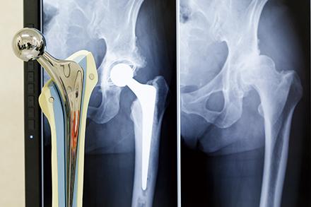 骨セメントを使った人工股関節置換術。治療精度を上げるため、細部まで微調整に努める