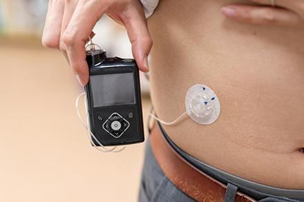 腹部などに小さな針を刺してインスリンを継続して注入。交換は数日に1回で良く、手軽に血糖を管理できる