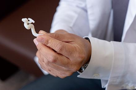 3Dプリンターで作製した脳血管の模型。治療方法の決定に役立つという