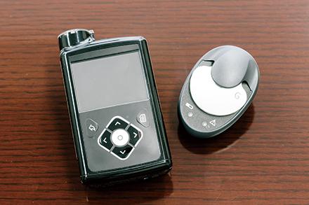 糖濃度のリアルタイム測定で、1型糖尿病のインスリンポンプ療法を行う